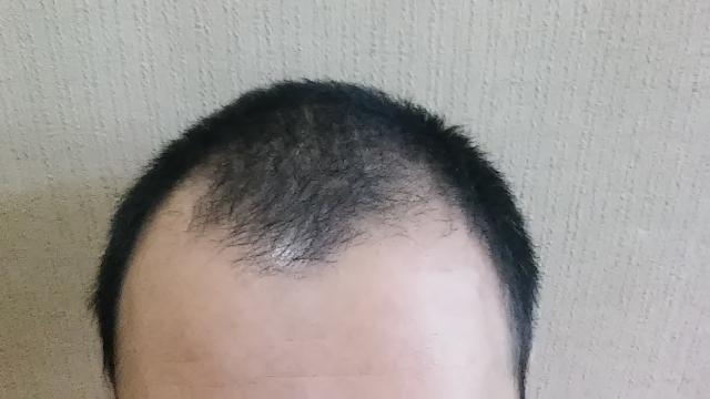【必見】薄毛で坊主は目立つ?目立たない?頭頂部M字ハゲの ...